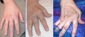 chronische Arthritis / Wikipedia